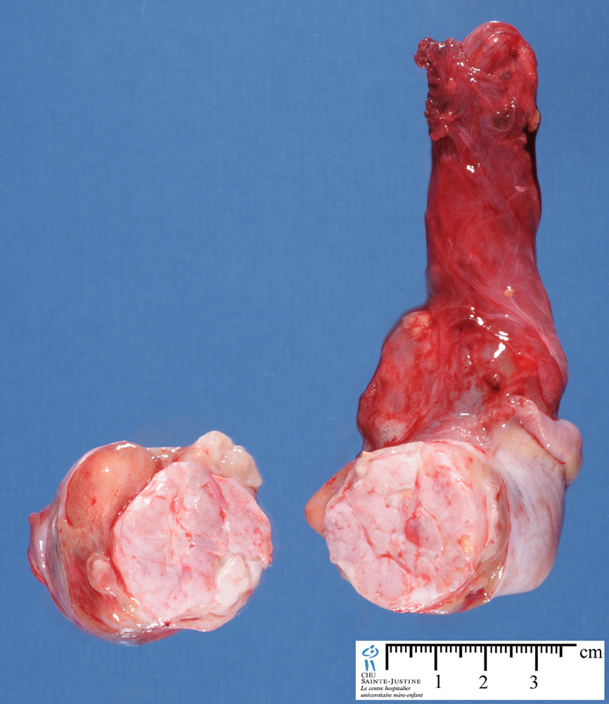 Spip besides Image likewise Spip together with 20060116 2902 as well 5031405. on endocrine tumor