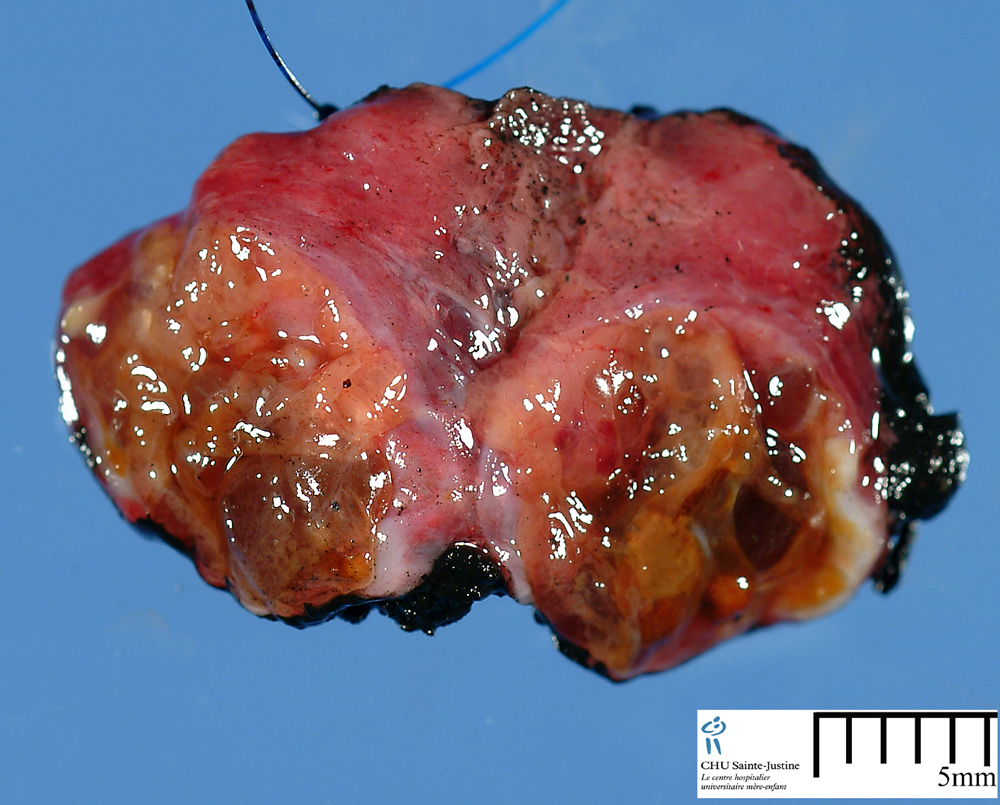 thyroid adenomas humpathcom human pathology