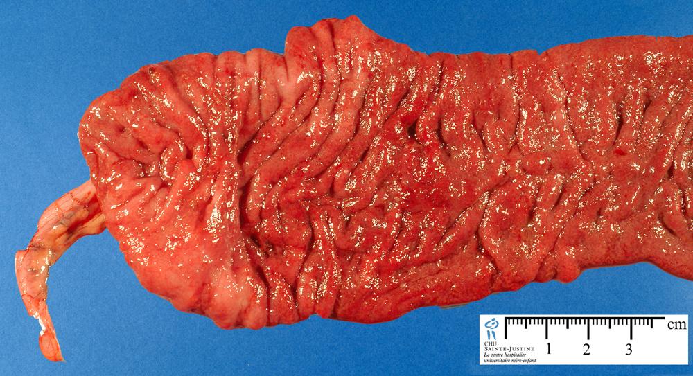 colitits Sperm ulcerative