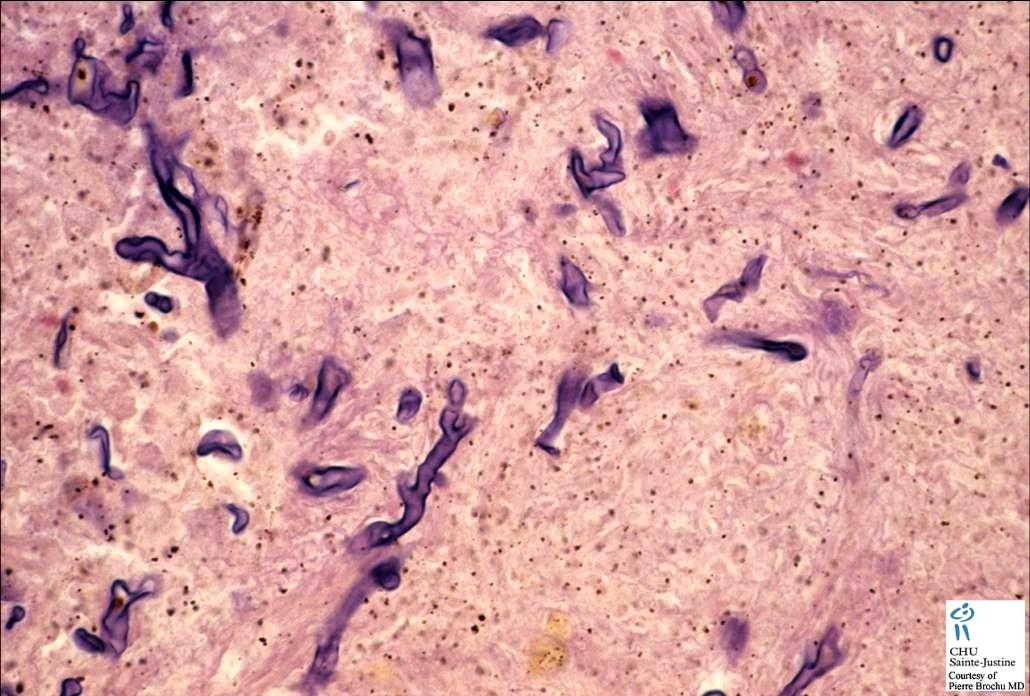 Fungal Infections Humpath Com Human Pathology