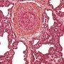 Intimal fibrosis in a small pulmonary artery in pulmonary hypertension (...)