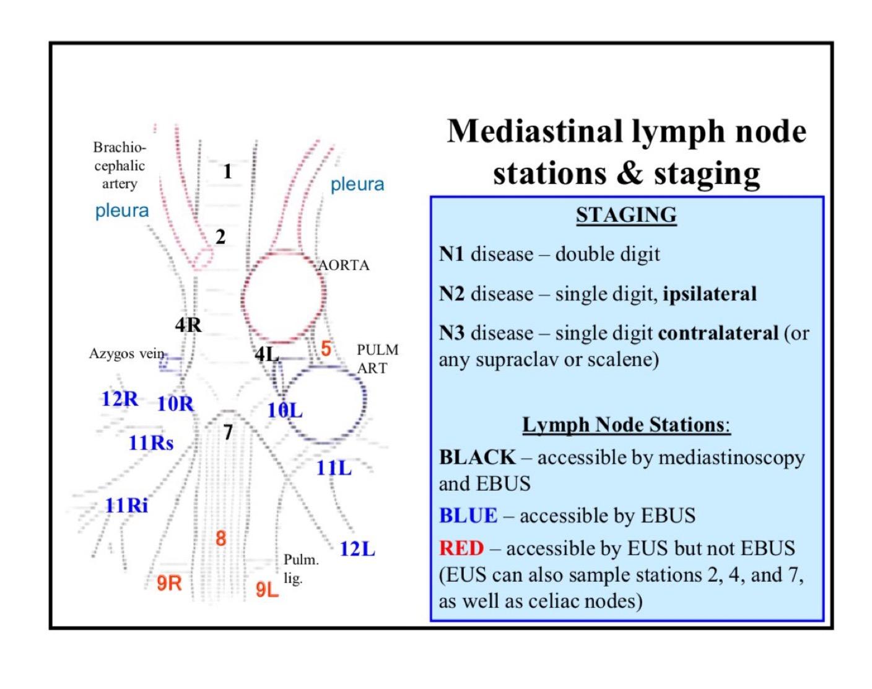 Mediastinal Lymph Nodes Humpath Human Pathology