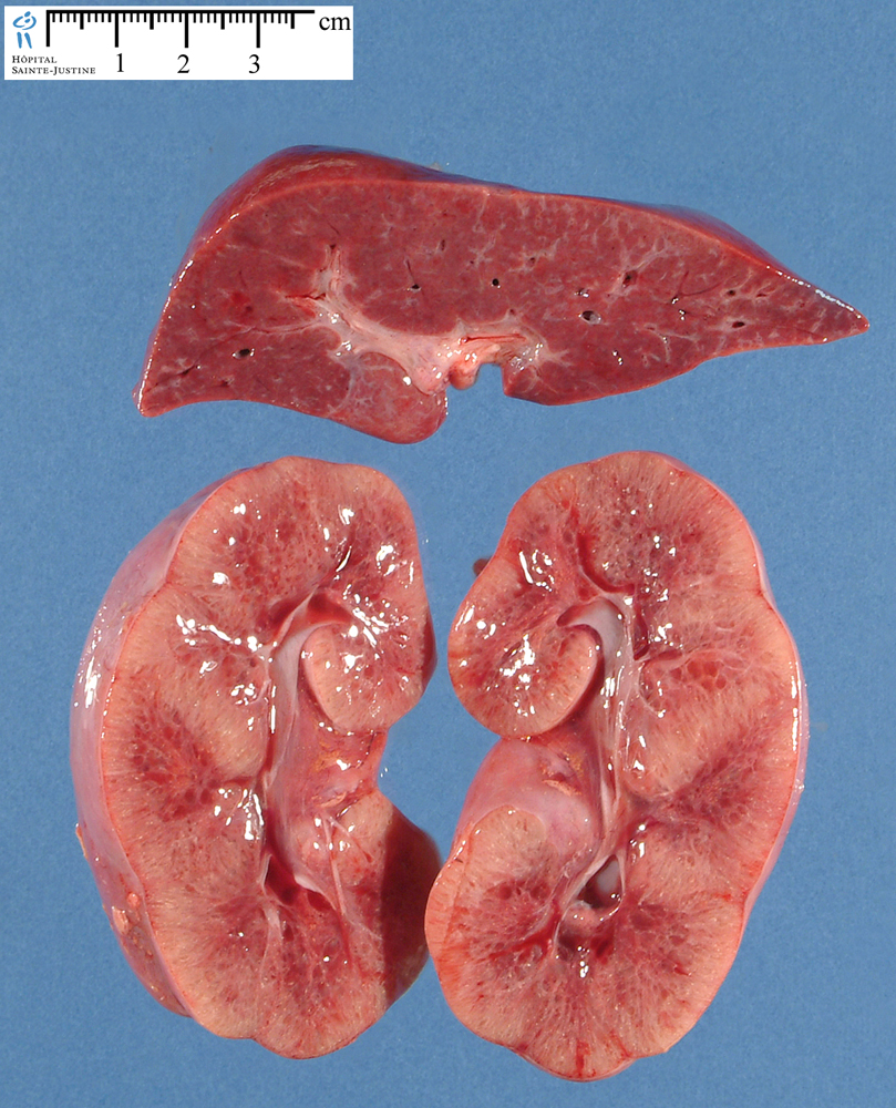 Polycystic Kidney Disease renal ARPKD - Humpath....