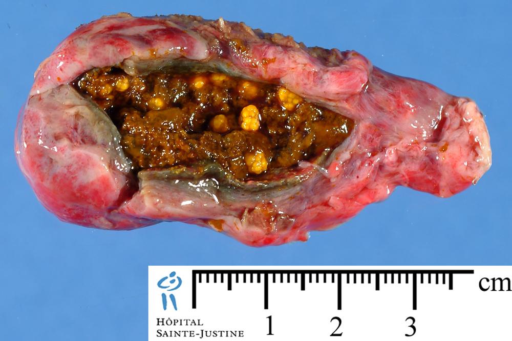 Biliary Sludge Humpath Com Human Pathology
