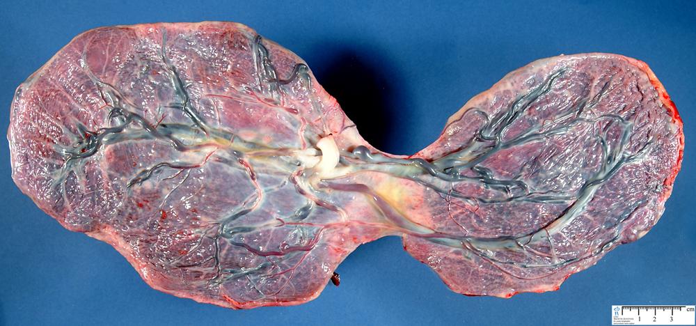 Bilobated Placenta