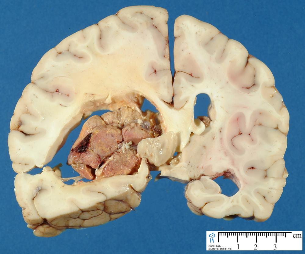 Choroid Plexus Carcinoma Humpath Human Pathology