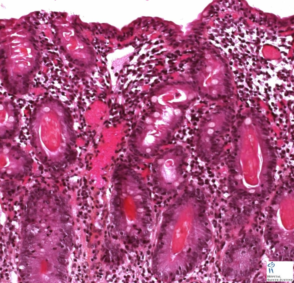 Viral Infections May Affect Cystic Fibrosis Patients: Human Pathology