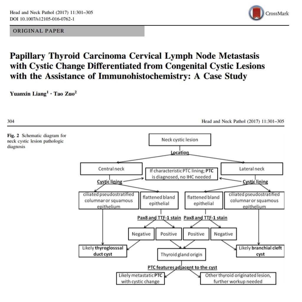 Cystic lymph node metastasis of papillary thyroid carcinoma portfolio pooptronica