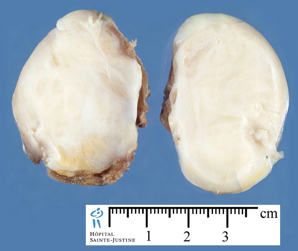 desmoid fibromatosis - Humpath.com - Human pathology