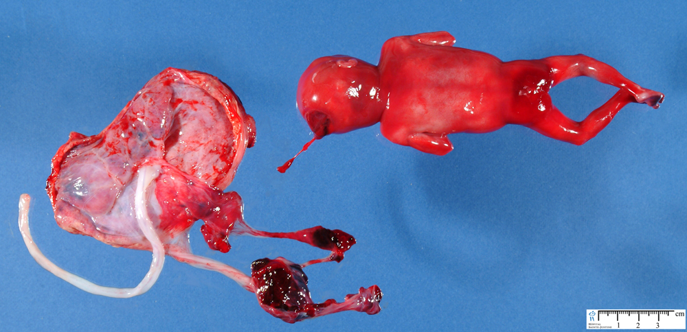 amniotic band sequence - humpath com