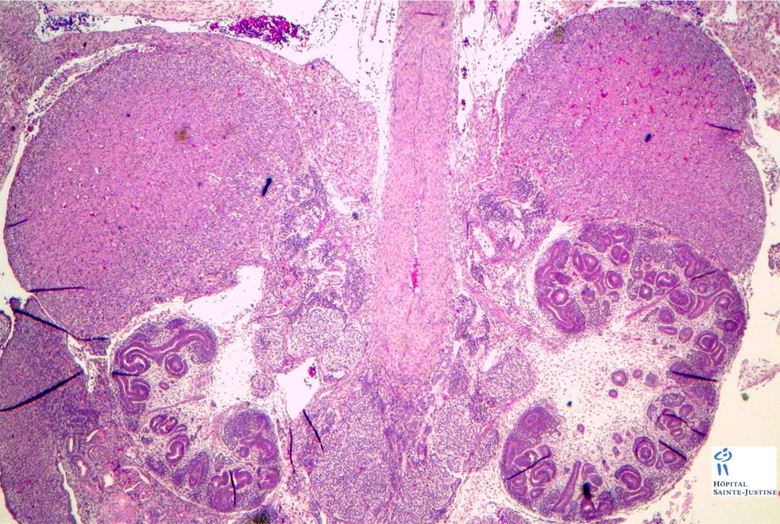 Fetal Adrenals