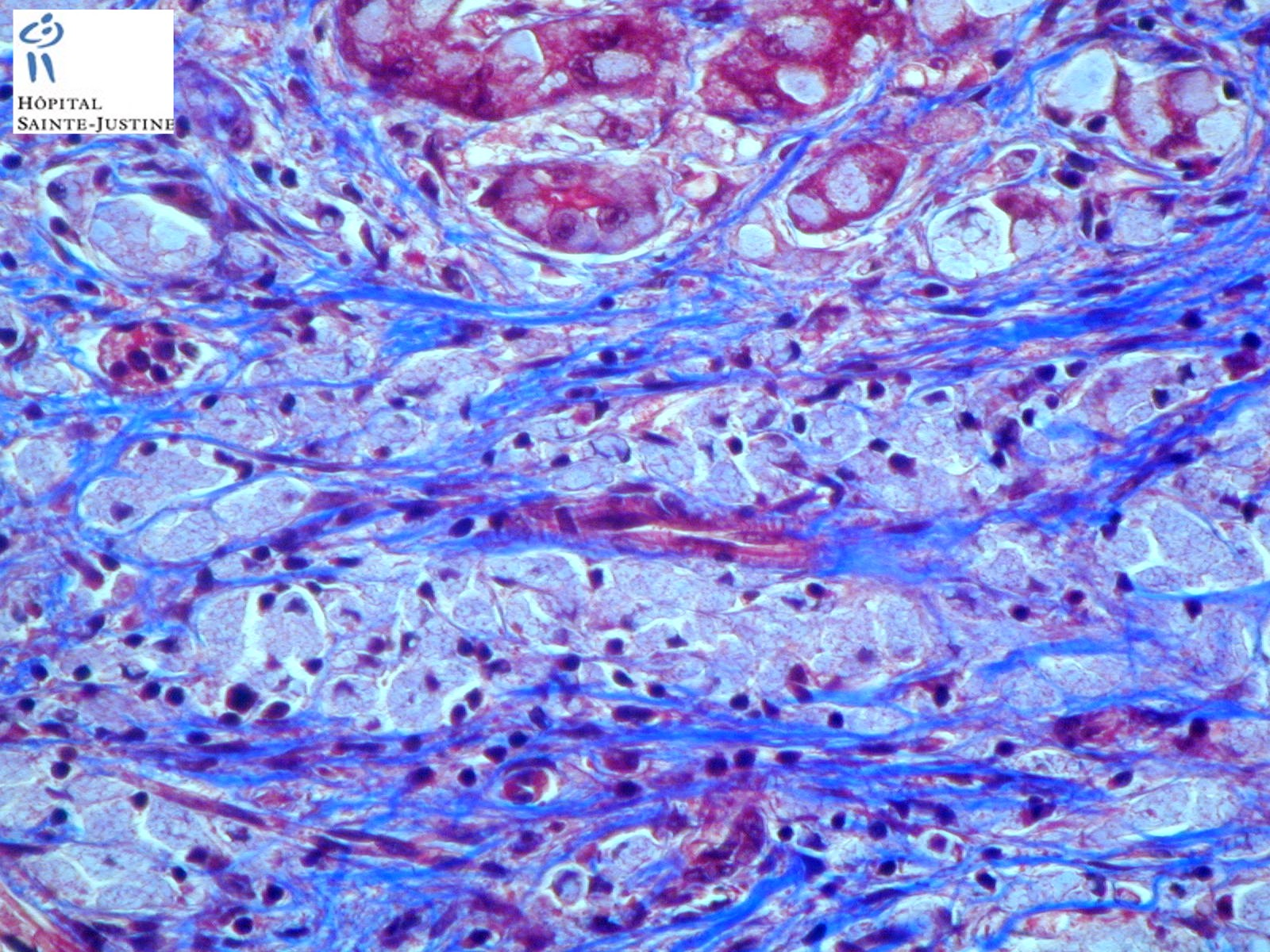 Glycogen Storage Disease Type 4 Humpath Com Human