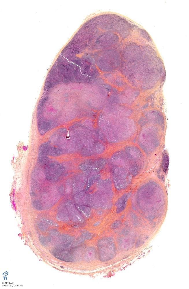 nodular sclerosing Hodgkin lymphoma - Humpath.com - Human ...