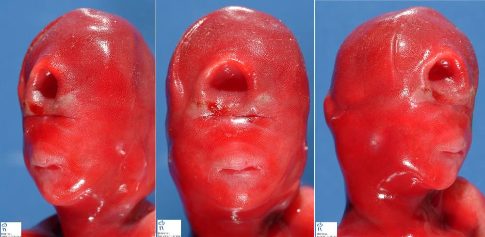 holoprosencephalies humpathcom human pathology