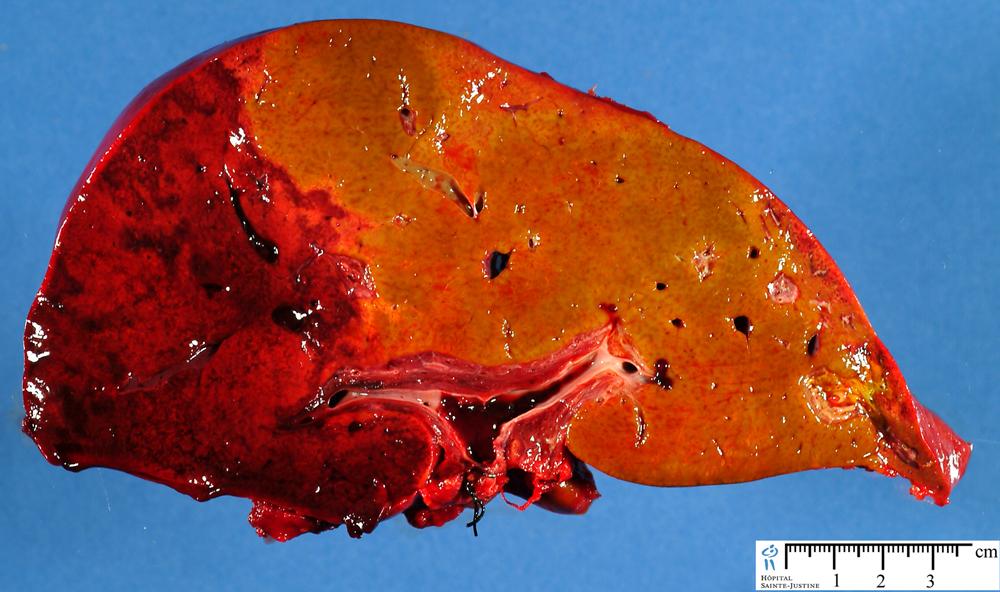 hepatic ischemia humpathcom human pathology
