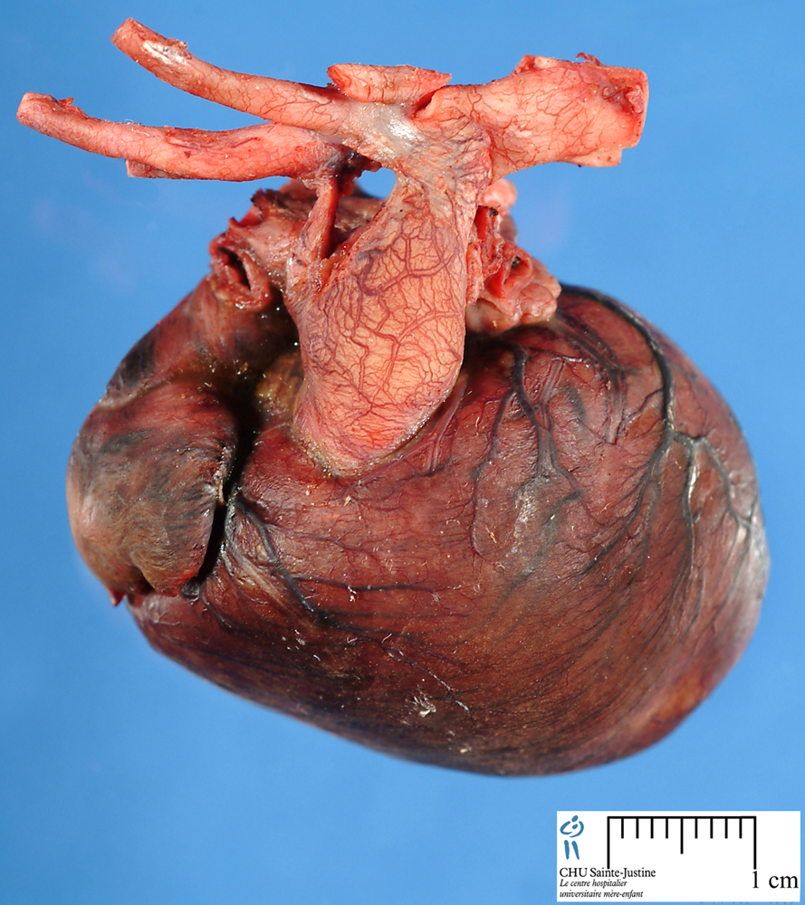left ventricle - Humpath.com - Human pathology