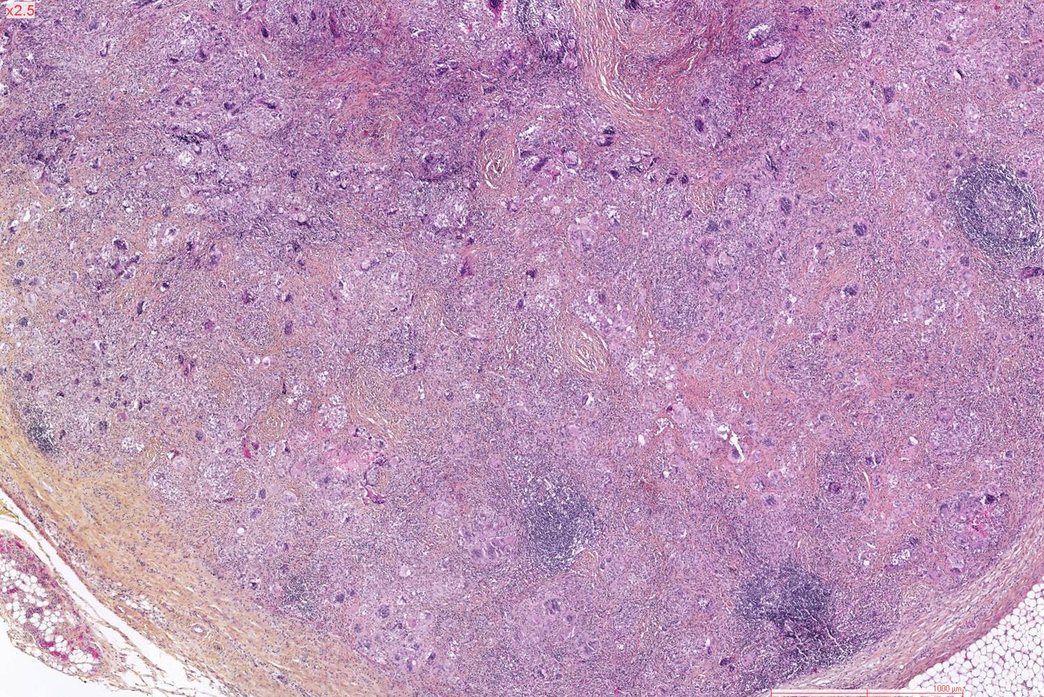 a study of cryptococcosis Background: cryptococcal meningitis (cm) is an important public health problem   objectives: the purpose of this study is to determine clinical.