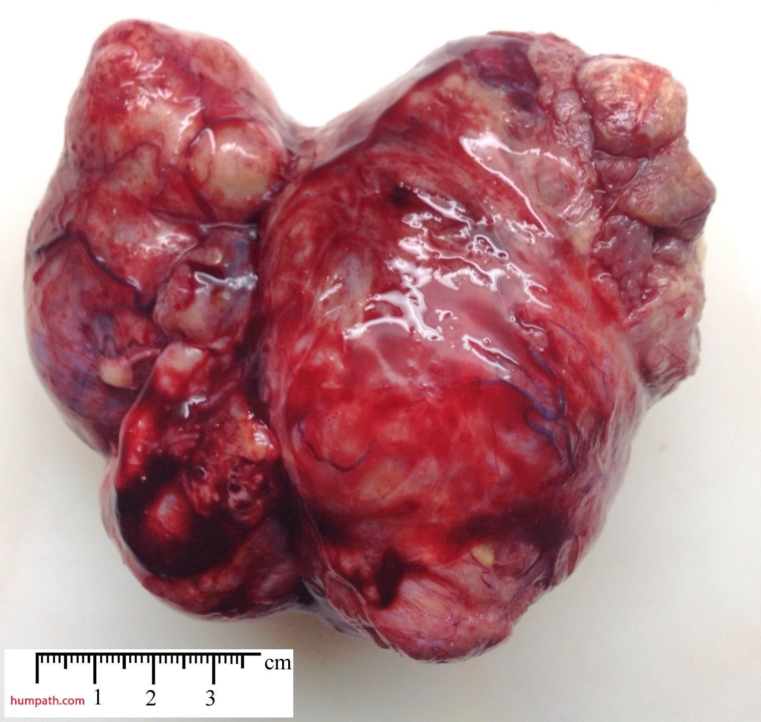 ovarian carcinomas humpath com human pathology