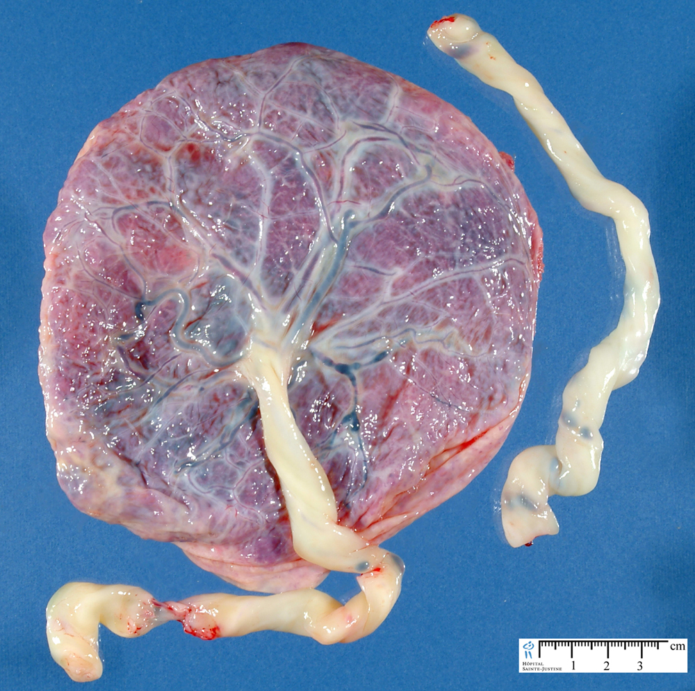 Placenta Humpath Human Pathology