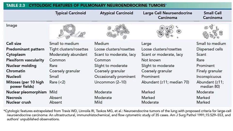 Pulmonary Neuroendocrine