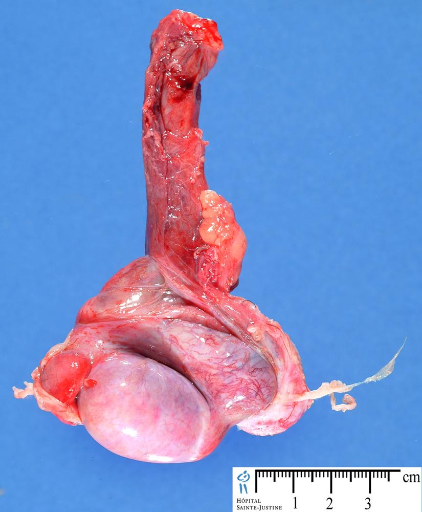 Testis Humpath Human Pathology