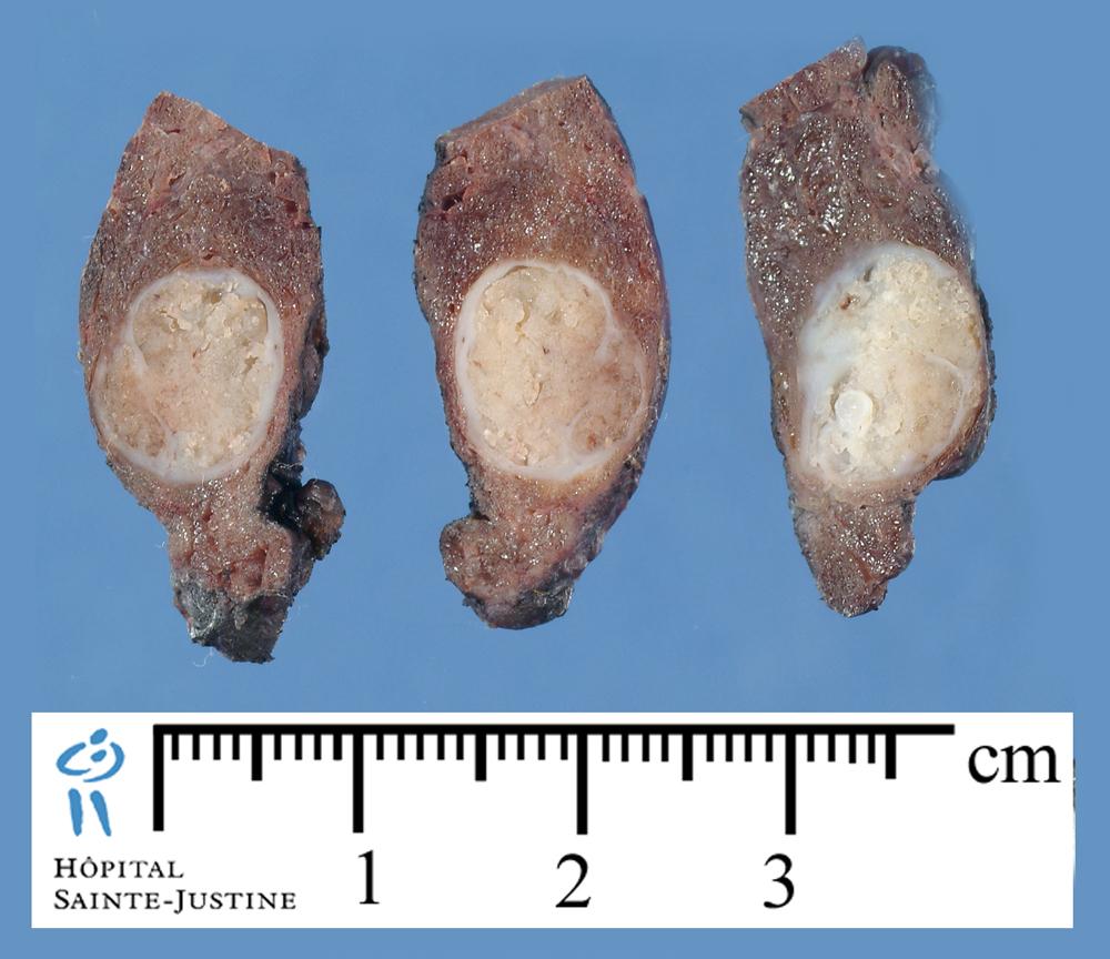 Thyroid cancer  Wikipedia