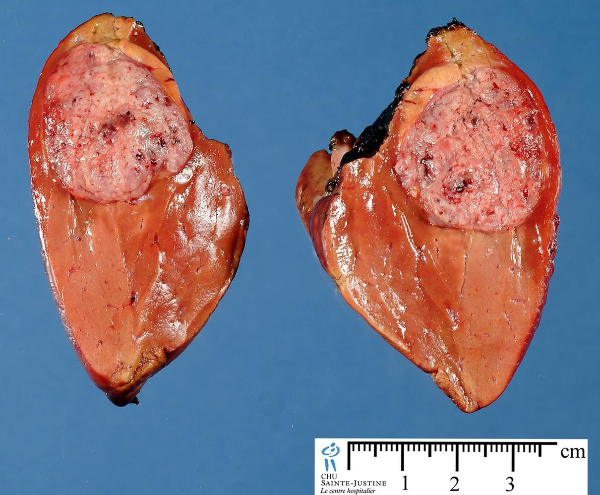 hepatoblastoma - Humpath com - Human pathology