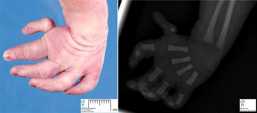 case 10516 sirenomelia and ectrodactyly humpathcom