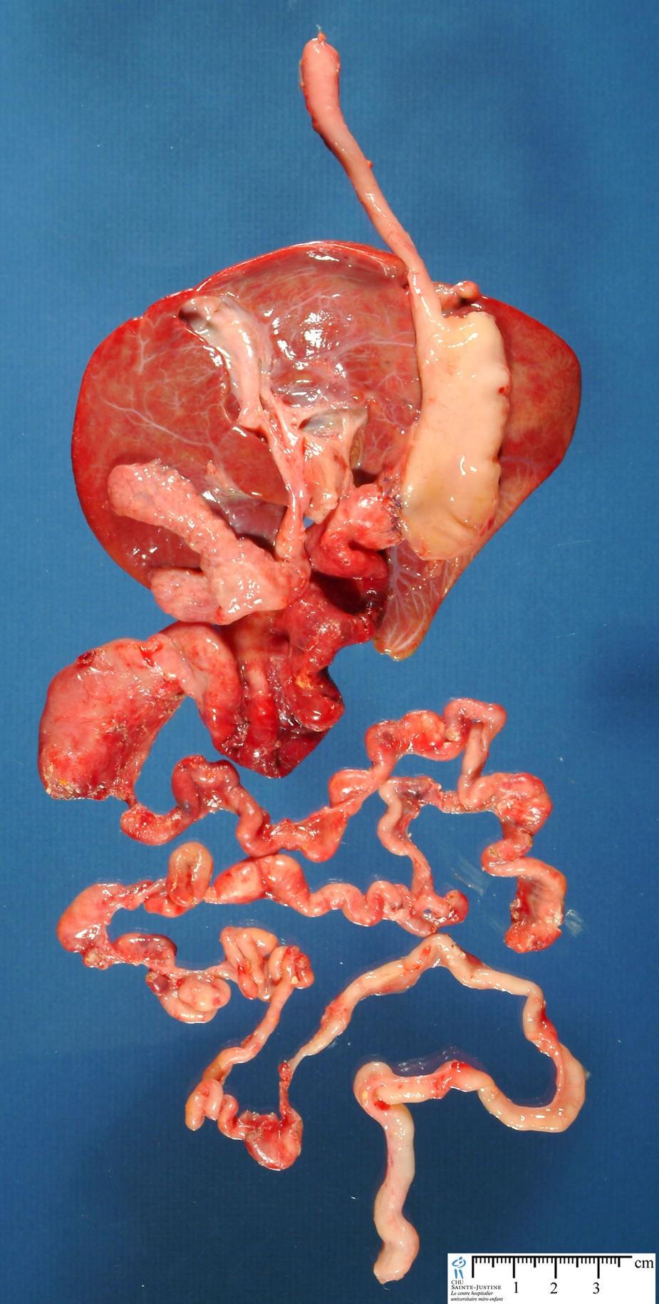 Case 12697 Multiple Intestinal Atresia Syndrome
