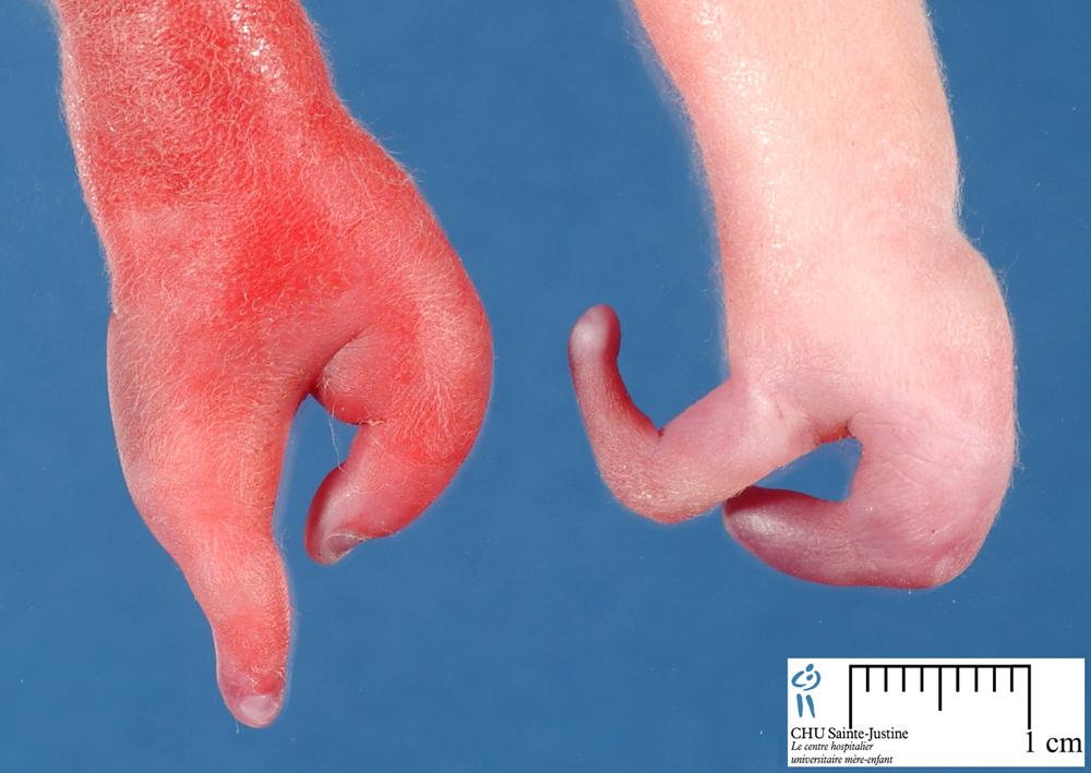 Ectrodactyly - Humpath Com