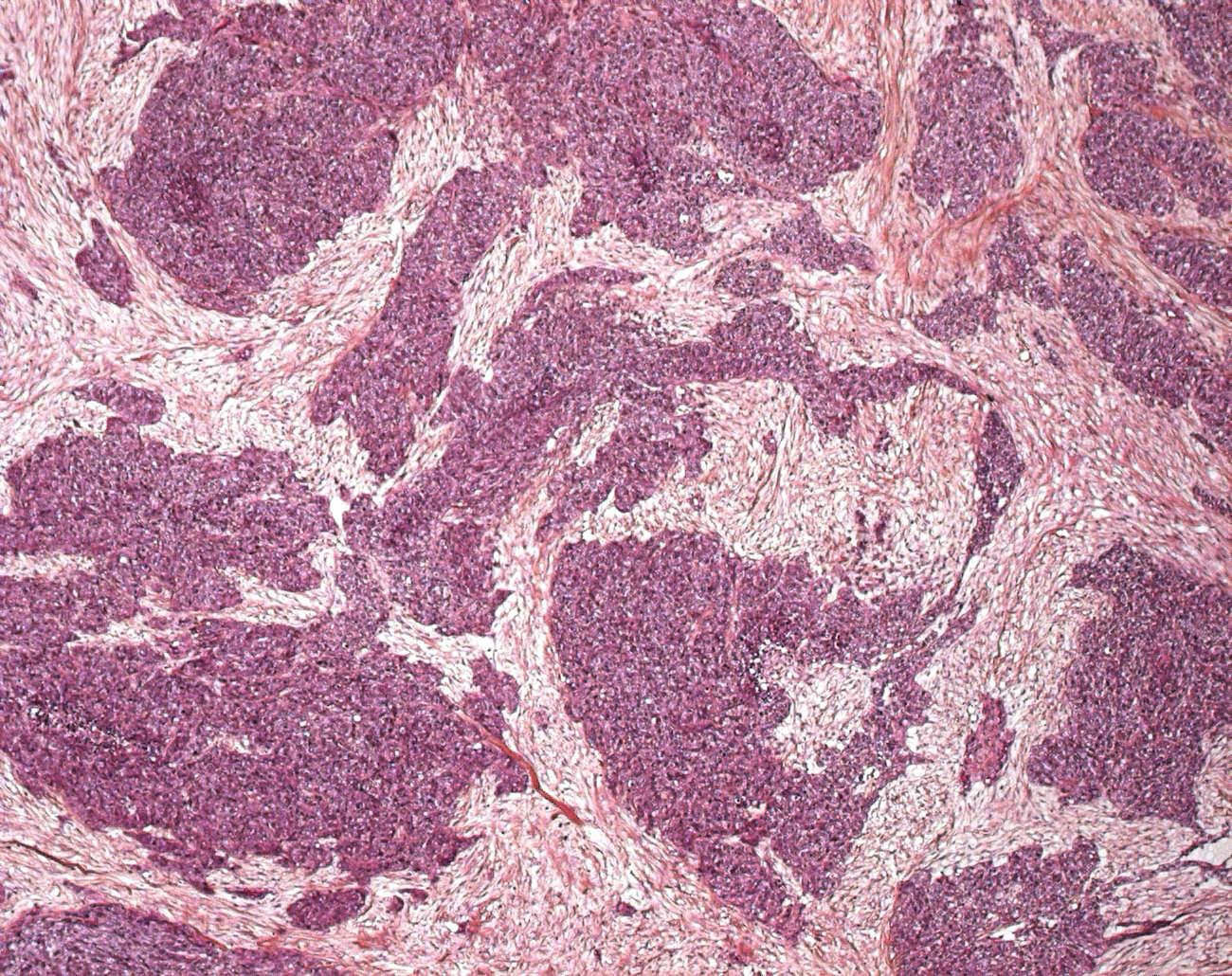 Abdominal Desmoplastic Small Round Cell Tumor