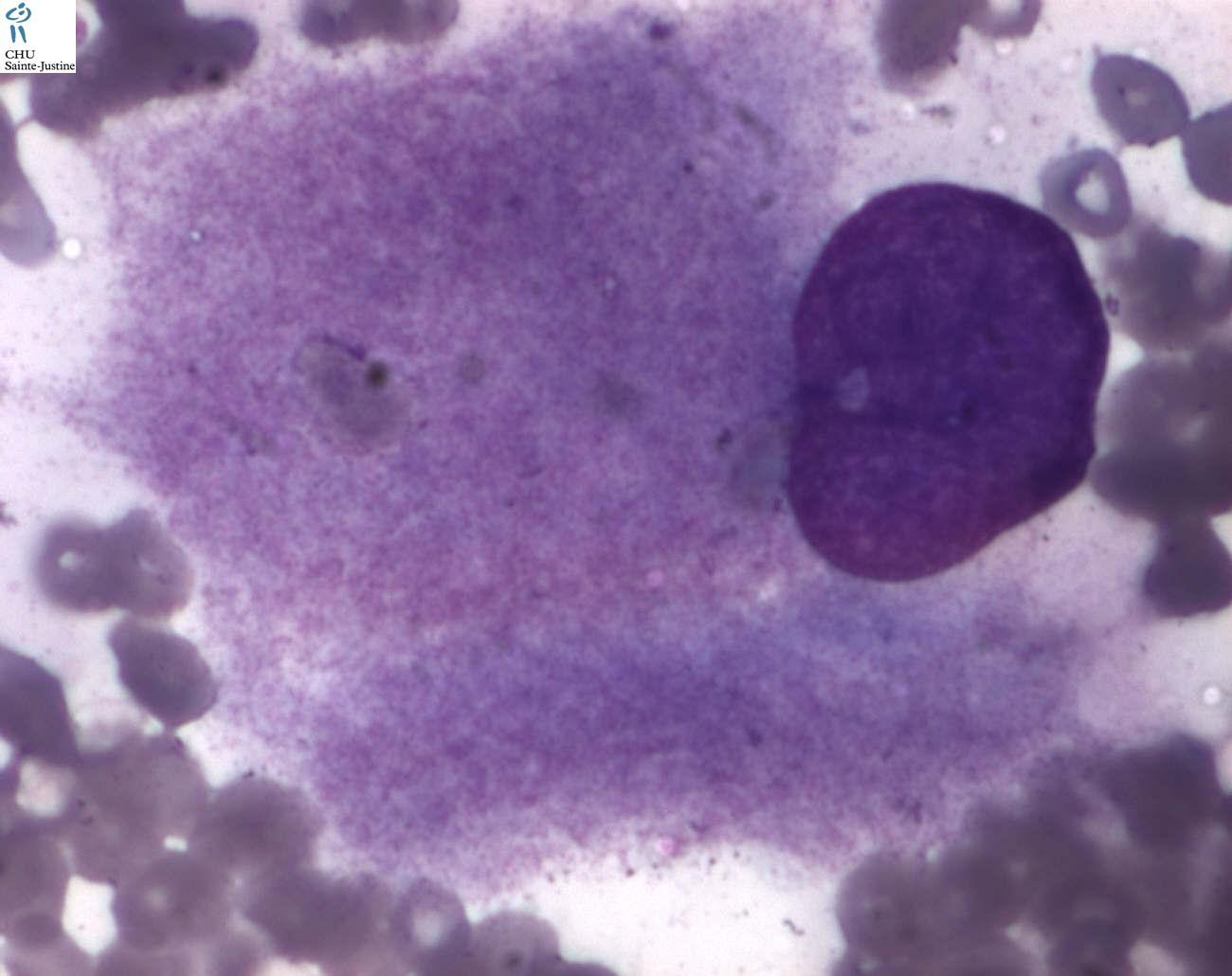 Gaucher Disease Humpath Com Human Pathology