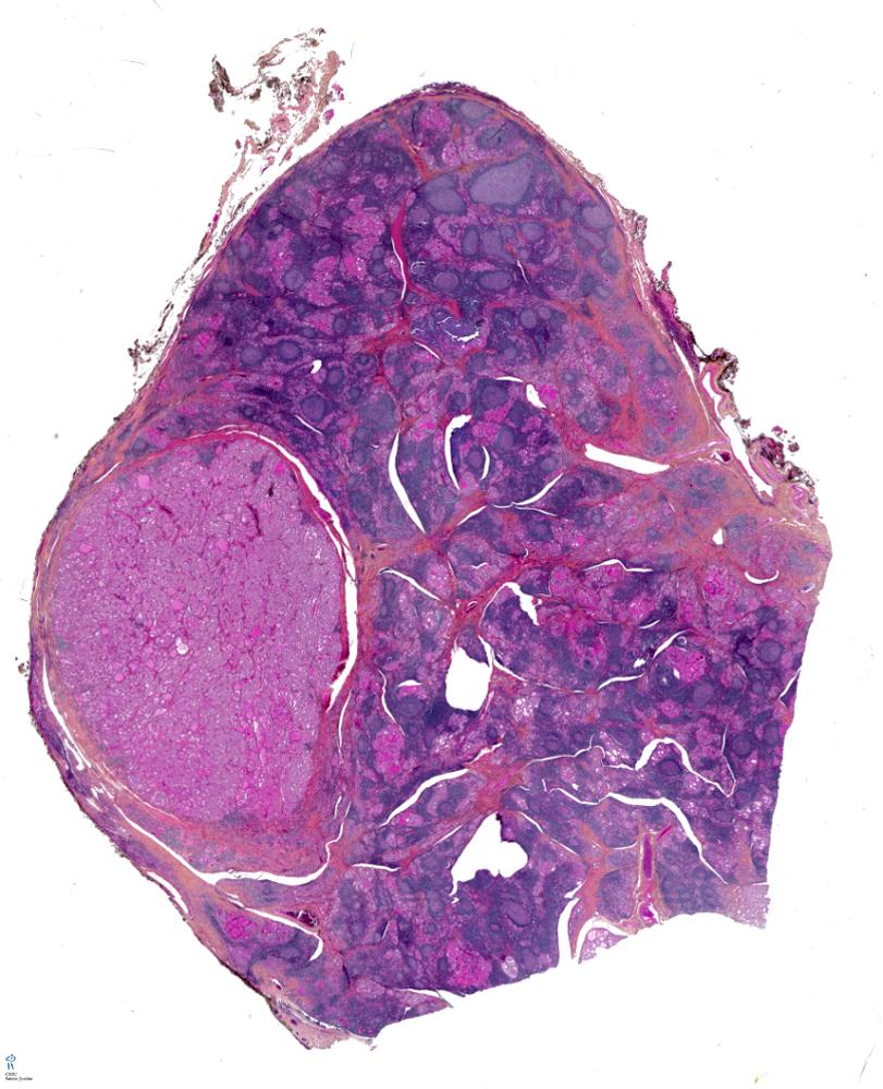 Parathyroid adenoma  Libre Pathology