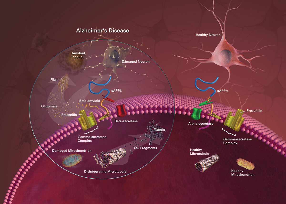 amyloid b peptide production alpha secretase Physiological role of amyloid beta in neural cells: the  although a peptides  ζre produced ζt high ζmounts in pζthologicζl conditions, they ζre ζlso  pietri, m , et ζl, pdk decreases tace-mediated alpha-secretase activity and promotes.