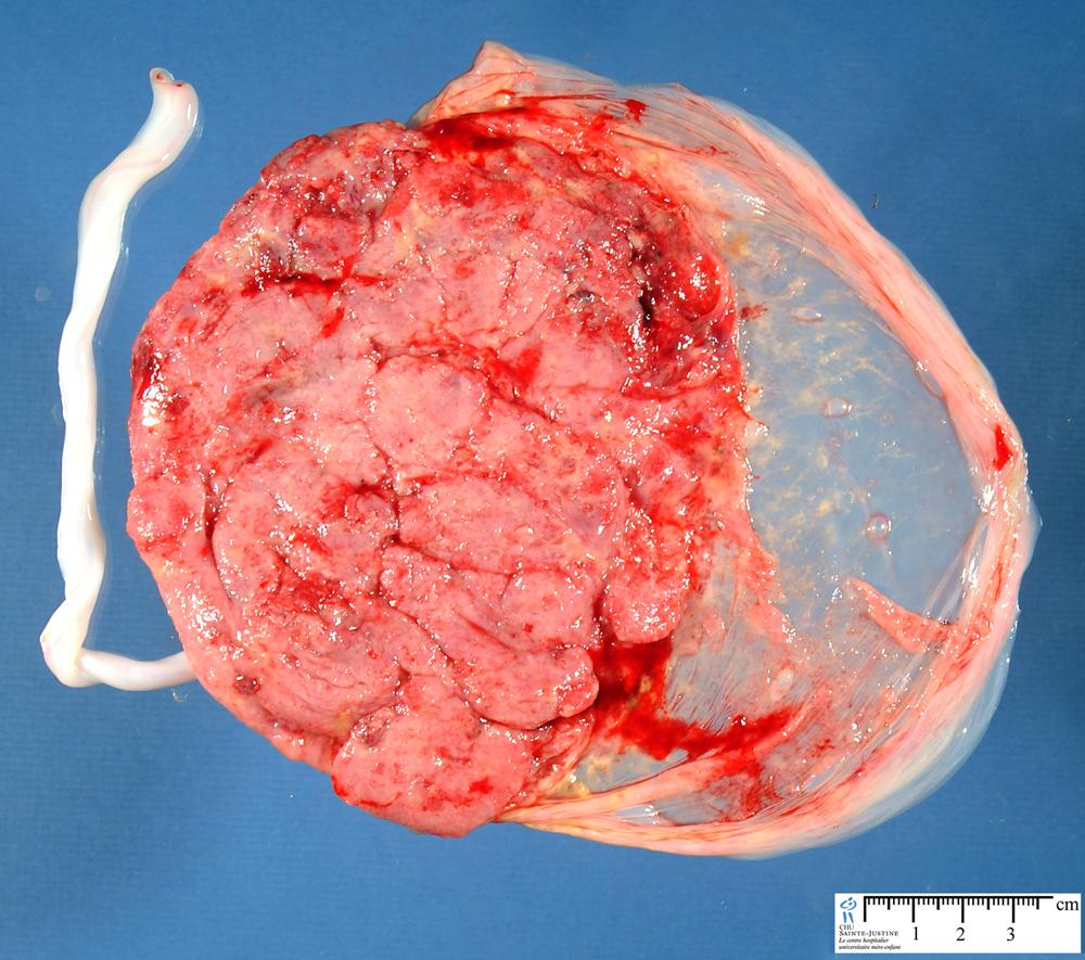 Jpg Amniotic Membrane Placenta A