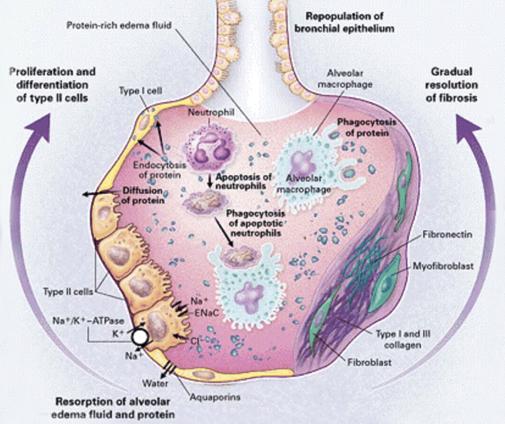 Pulmonary Fibrosis X Ray ARDS - Humpath.com - H...
