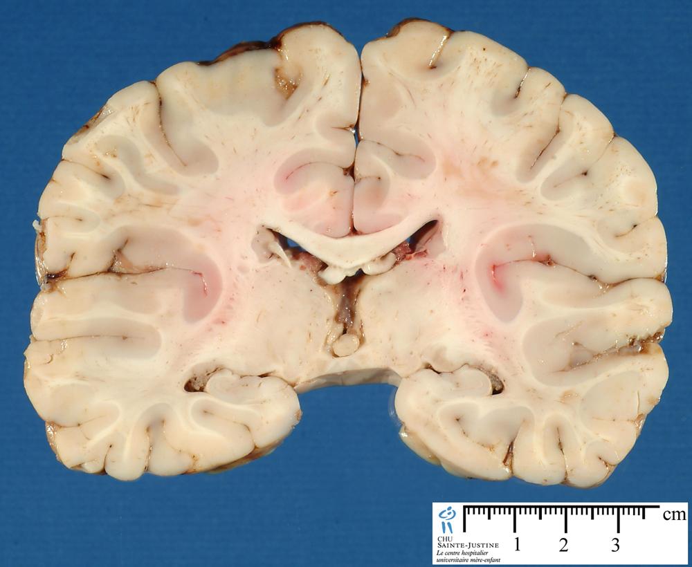 Brain Frontal Section 2 Humpath Com Human Pathology