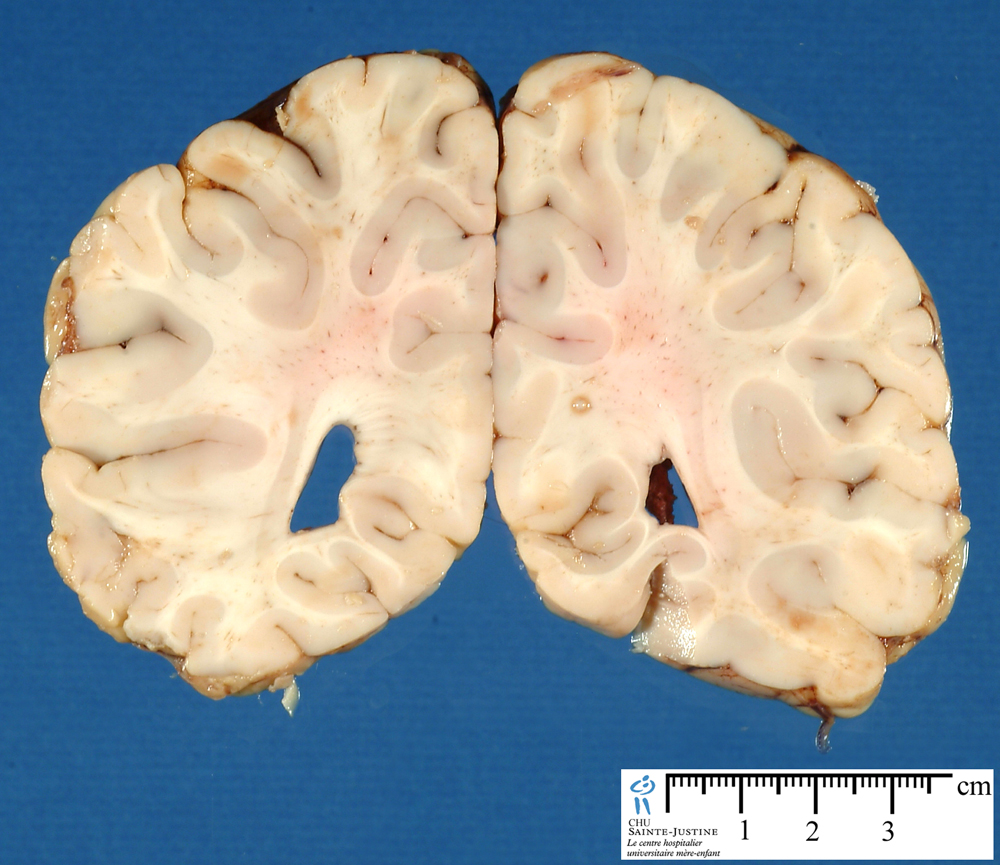 brain frontal section 2 - humpath com