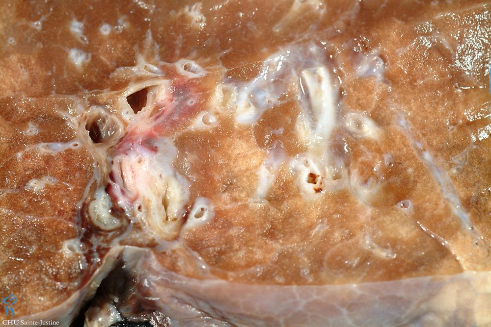 bronchiectasis - Humpath.com - Human pathology