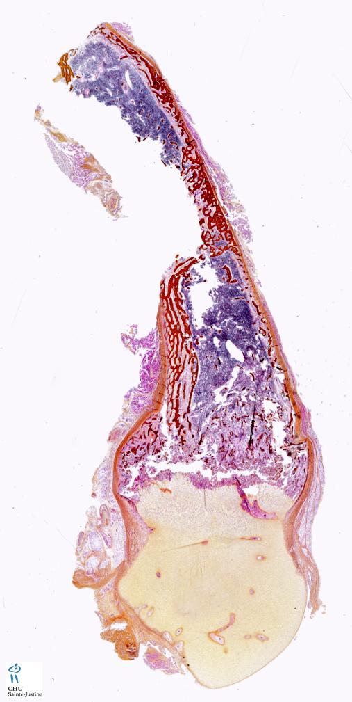 osteochondrodysplasias - Humpath.com - Human pathology