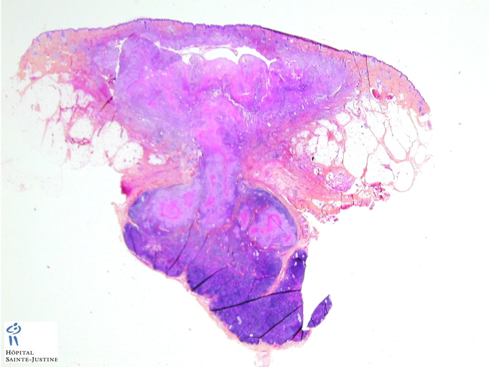 Caseous Necrosis Humpath Com Human Pathology