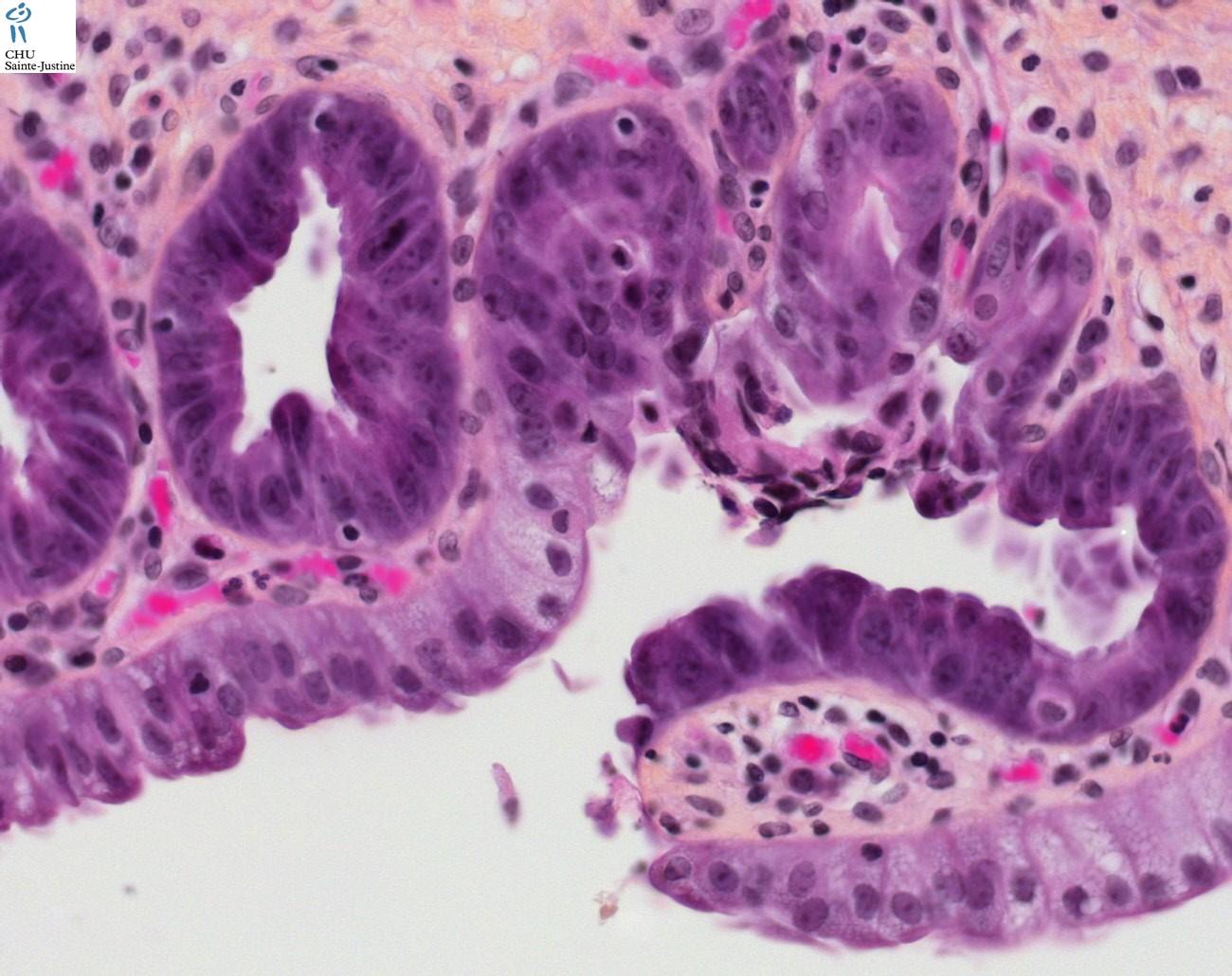 choledochal cyst - Humpath.com - Human pathology