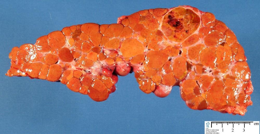 cirrhosis humpathcom human pathology