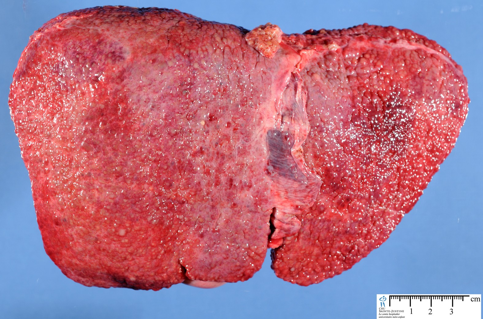 liver tumors caused by steroids