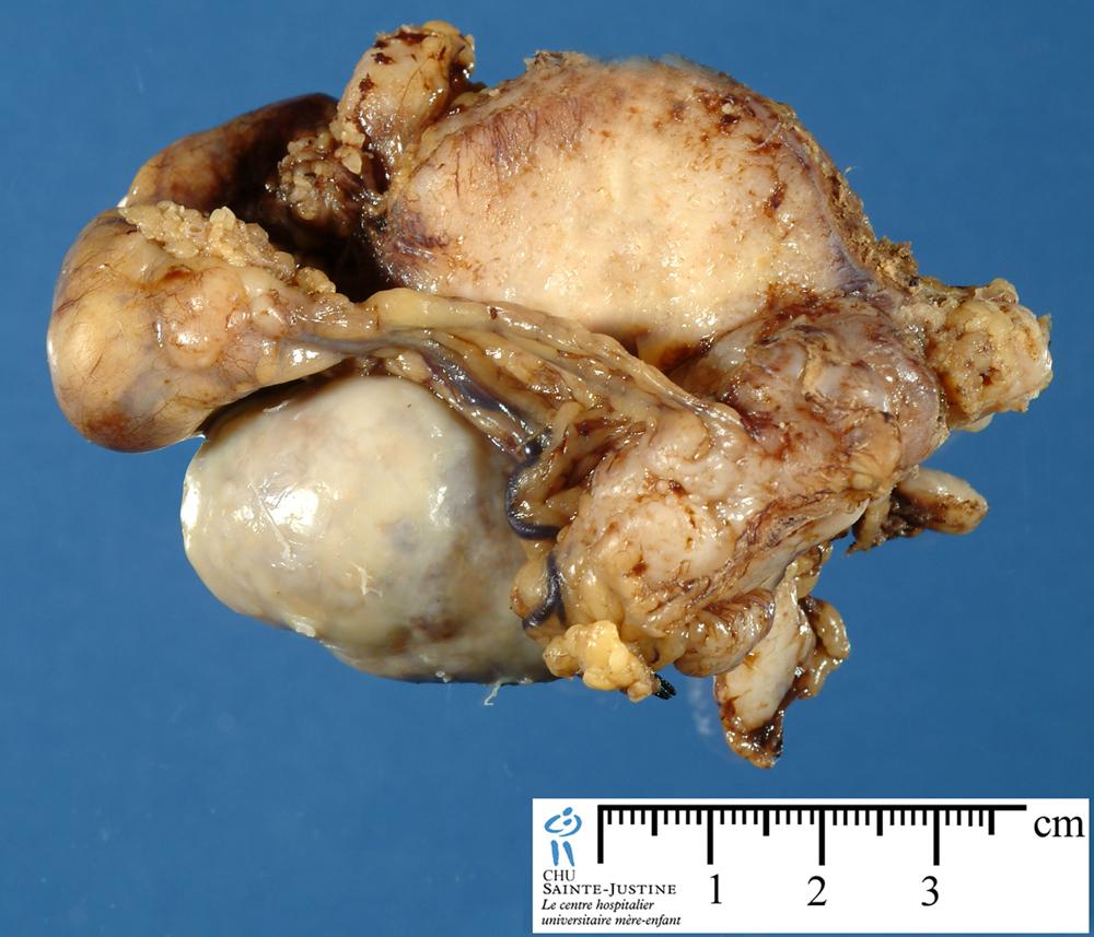Peritoneal Desmoplastic Small Round Cell Tumor