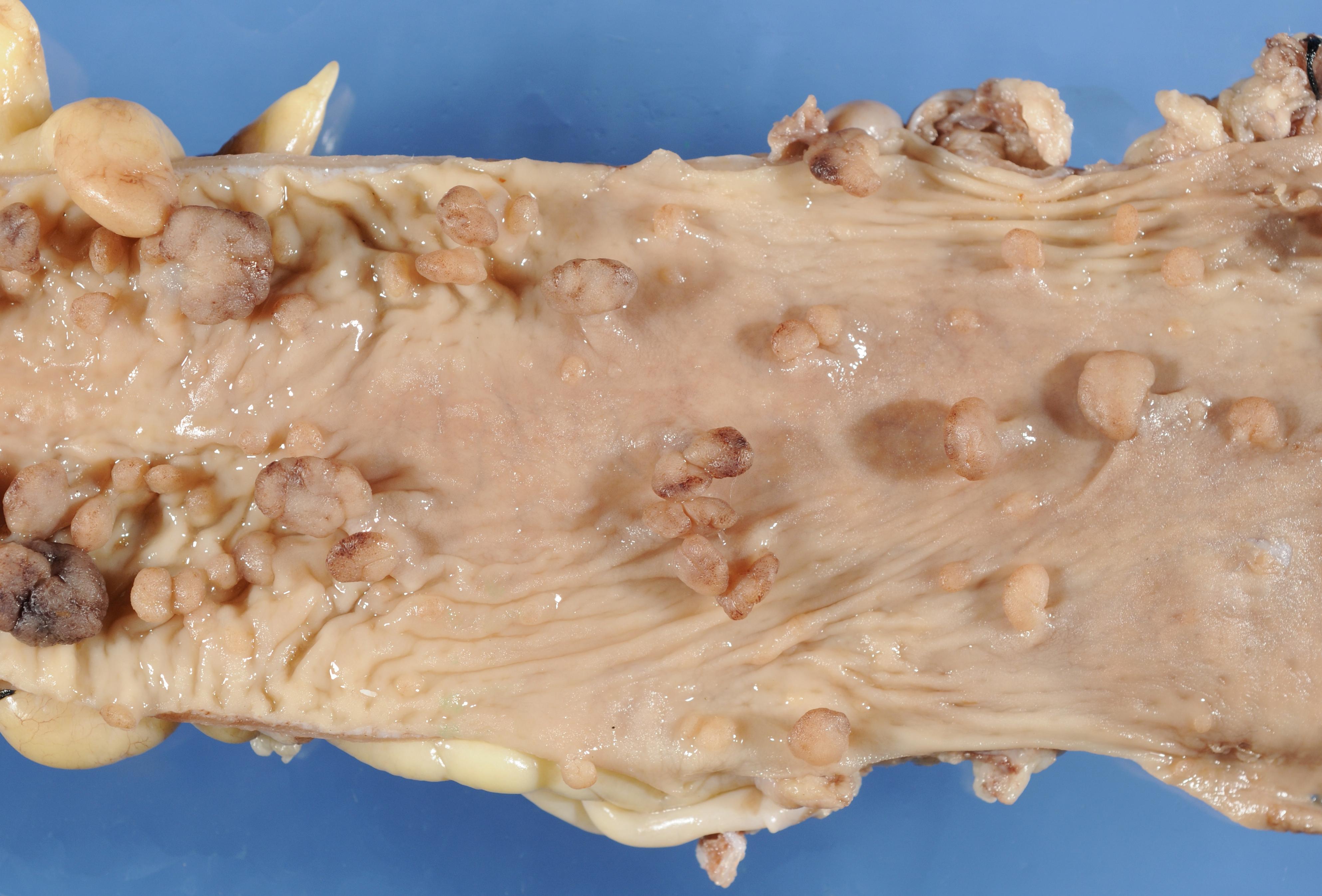 familial adenomatous polyposis - Humpath.com - Human pathology