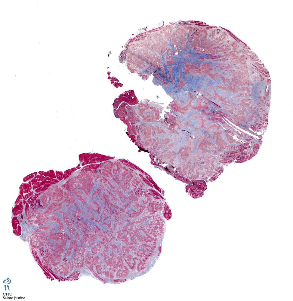 capillary hemangioma - Humpath com - Human pathology