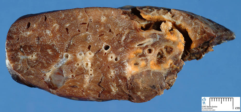 Pulmonary Cystic Fibrosis - Humpath Com