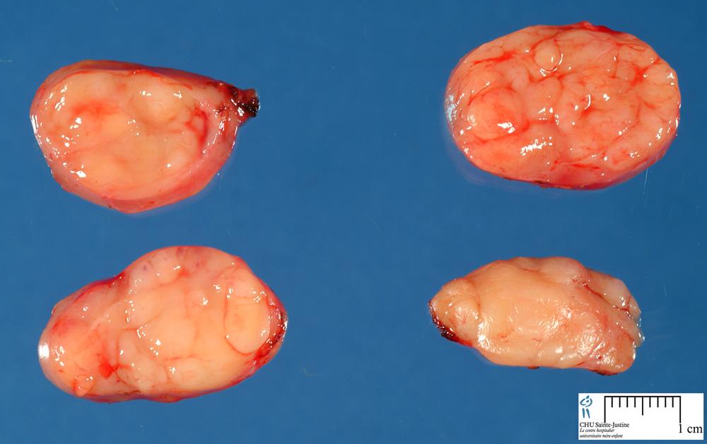 Castleman Disease Humpathcom Human Pathology