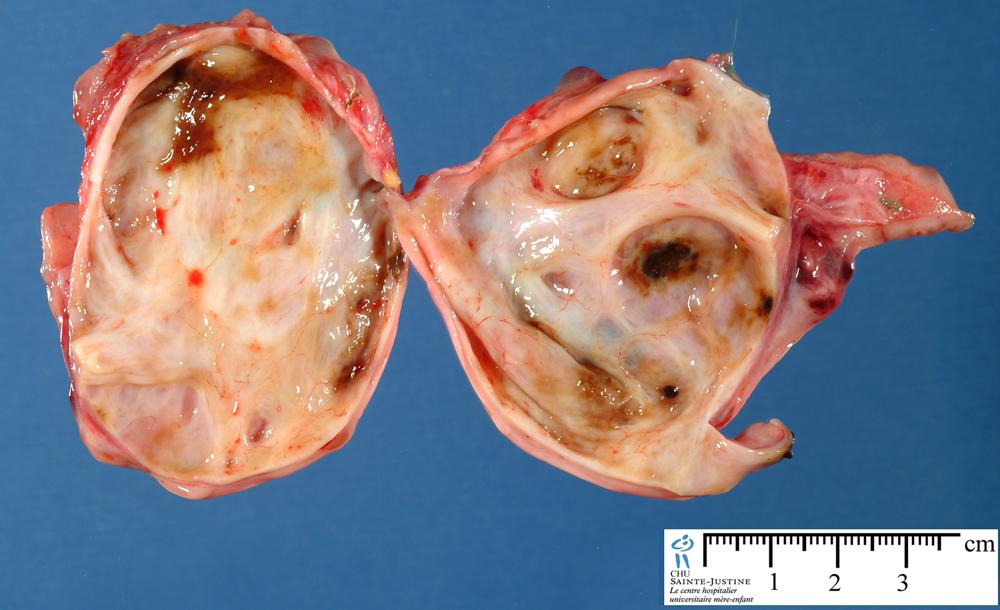 ovarian cysts - Humpath.com - Human pathology